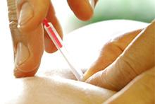 トリガーポイント鍼治療